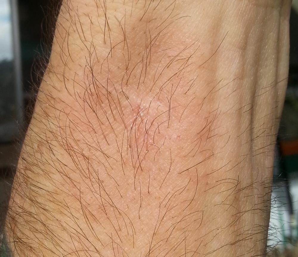 wrist infection